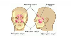 Препоръки при остър синузит